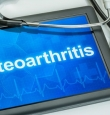How A Physical Therapist Can Help With Osteoarthritis